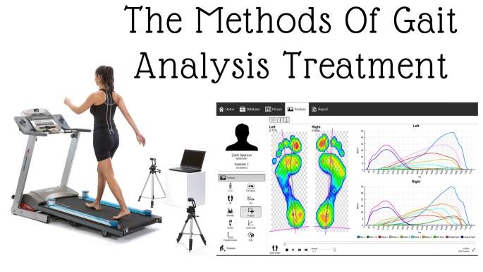 The Methods Of Gait Analysis Treatment